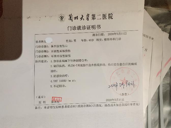 捷豹-XFL气囊伤人,希望厂家不要让消费者受伤又伤心